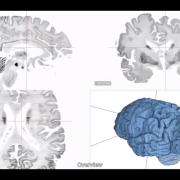 BigBrain 3D Brain